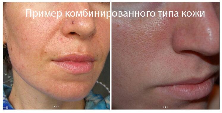 Реальное фото комбинированного типа кожи без фильтров (пример)