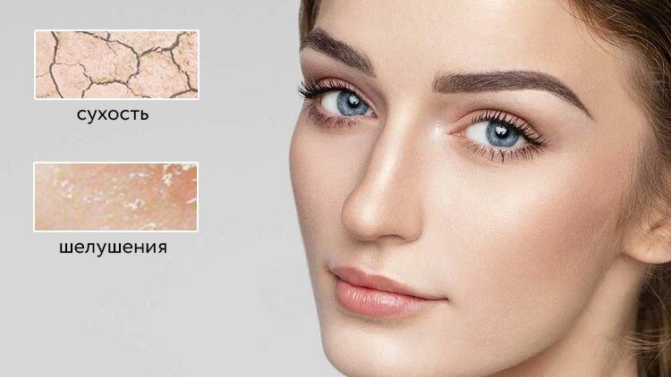 Сухая кожа — тонкая и склонна к шелушениям, поры практически отсутствуют, редко появляются высыпания