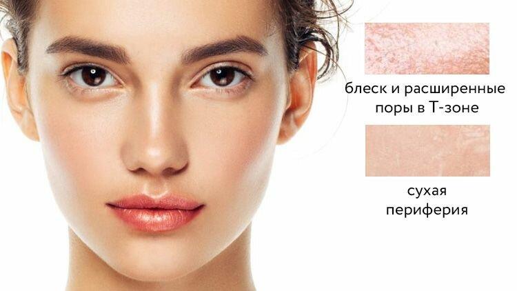 Комбинированная  кожа — кожа с жирным блеском и расширенными порами, но только в T-зоне, периферия склонна к сухости