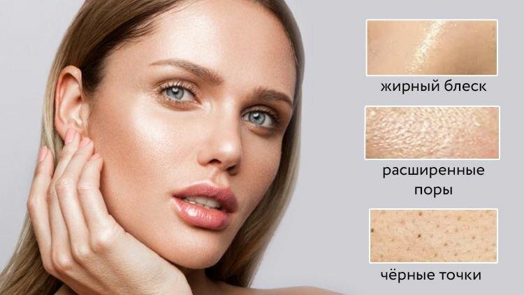 Жирная кожа — кожа с жирным блеском, расширенными порами, склонна к чёрным точкам и высыпаниям