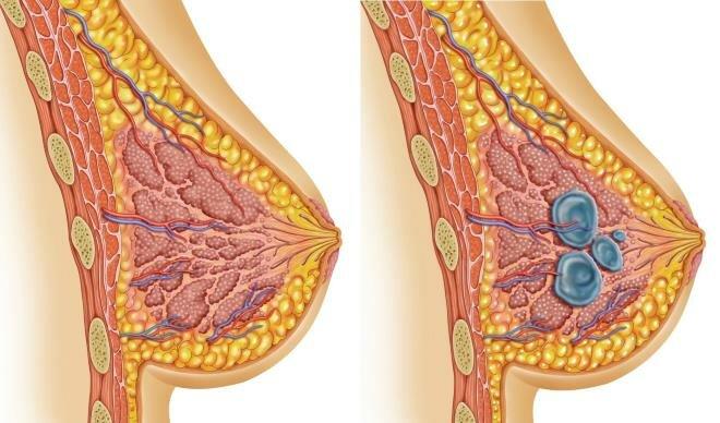 Мастопатия. Мастопатия требует своевременного и грамотного лечения, т.к. опасна тем, что может перерасти в раковое заболевание.