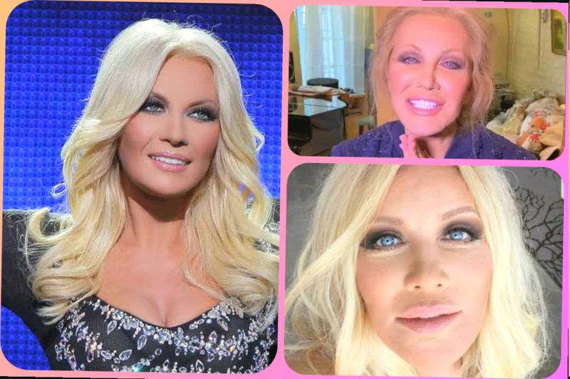 """Влияние """"уколов красоты"""" на внешность и здоровье. 3 примера на звездах шоу-бизнеса"""