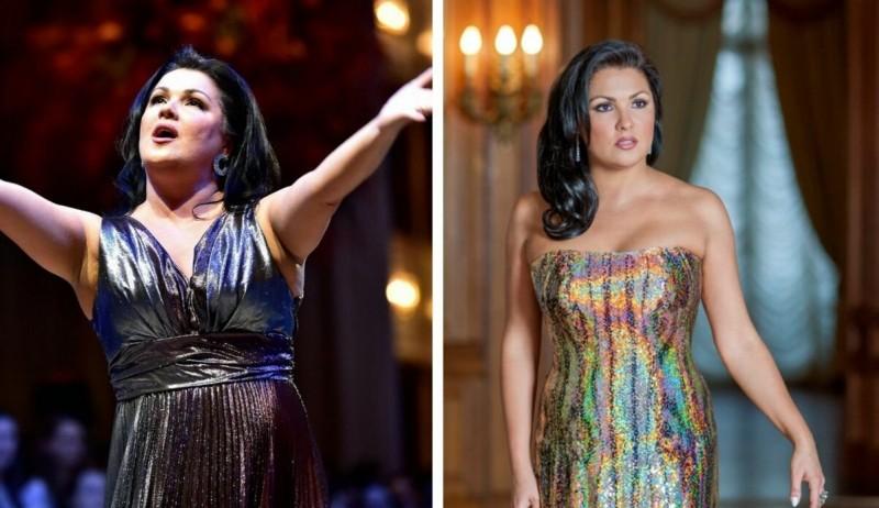 Анна Нетребко похудела — до и после