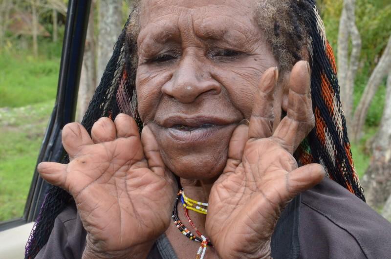 Отрезание фаланг у народов Дани в Индонезии [фото из интернета]