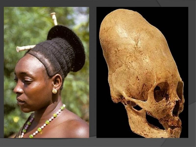 Деформация черепа [фото из интернета]