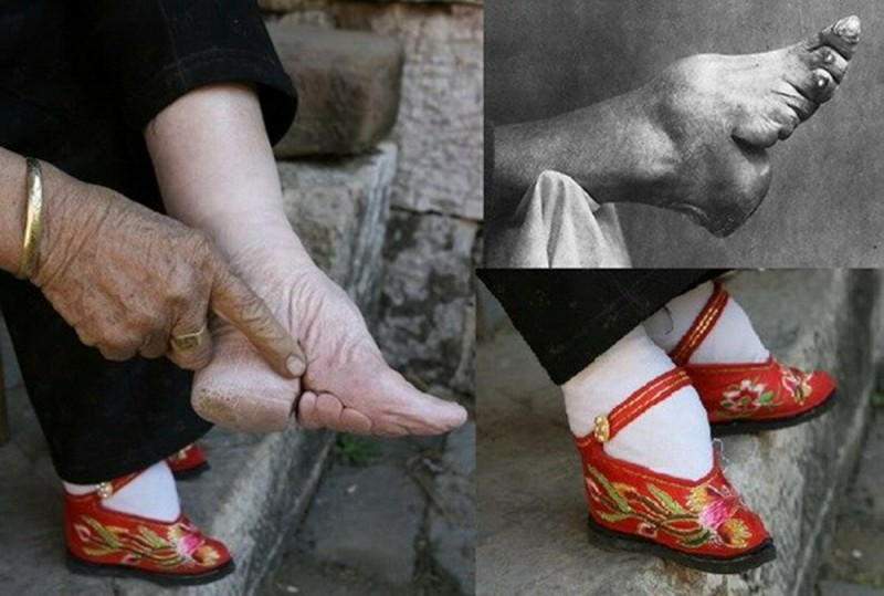 Лотосовые ножки [фото из интернета]