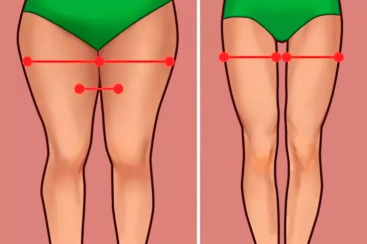 «Толстые ноги» - проблема многих женщин.