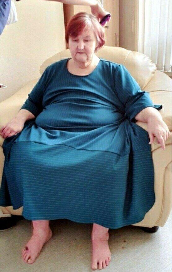 Женщина после похудения / Фото: NashGorod.Ru