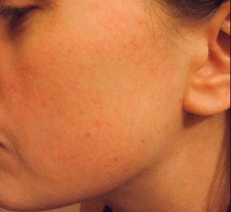 Шелушения и покраснения на лице могут стать серьезной проблемой