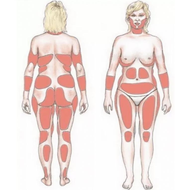 Женщине важно знать свой тип фигуры, чтобы понимать, какие части тела нуждаются в коррекции.