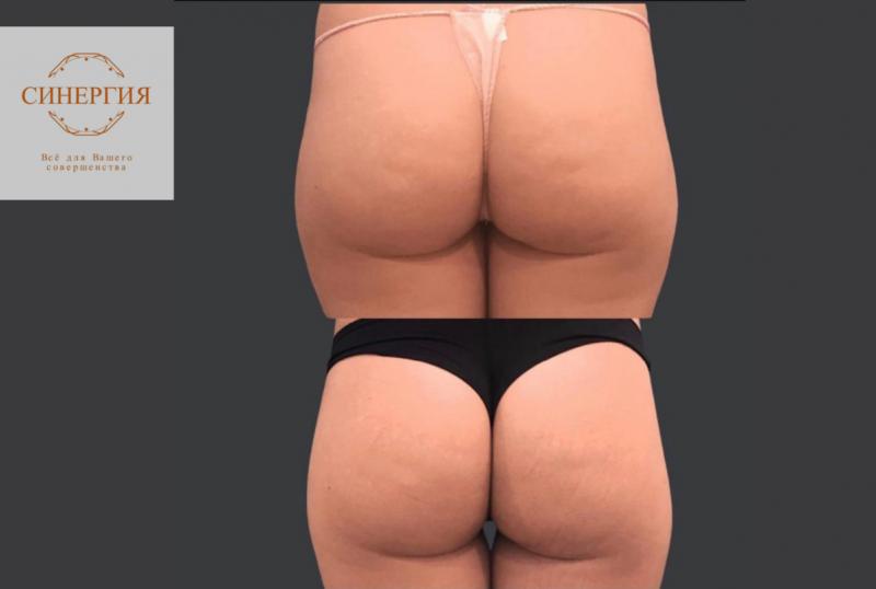 Eximia - быстрый способ похудеть!