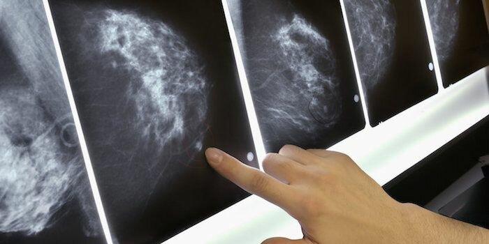 Женщины с избыточным весом должны чаще проходить скрининг на рак молочной железы