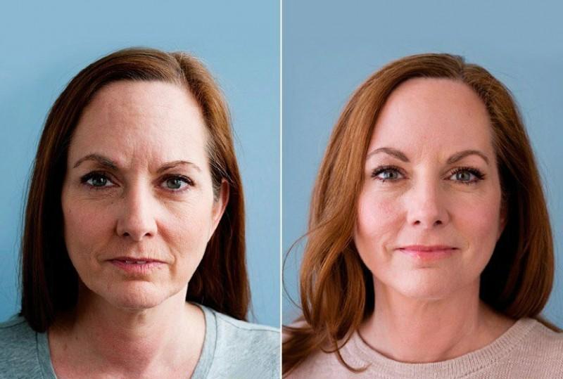 Секреты женской красоты и молодости после 40 лет. Уход за кожей лица