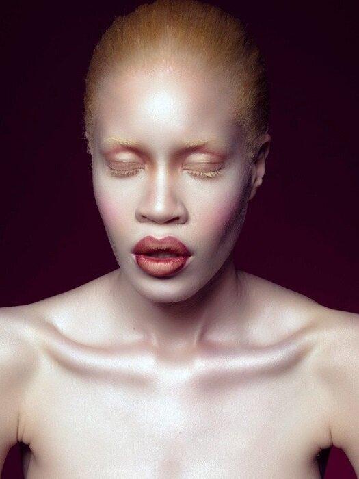 Диандра Форрест - афроамериканка-альбинос